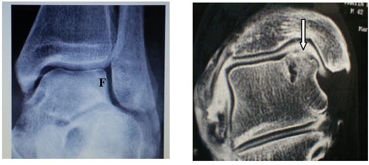 """Résultat de recherche d'images pour """"lesion du dome astragalien"""""""