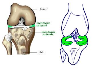 GENOU - Lésions méniscales | Docteur Franck Schaison - Chirurgien ...
